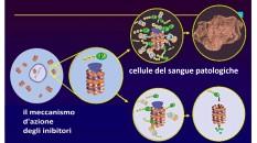 terapia innovativa nel mieloma multiplo